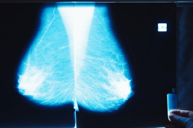 Breast Cancer Screening, research