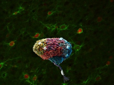 Brain Nets Photo Sorg