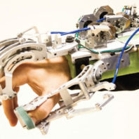 Hand and forearm covered by a glove made of metal and wires.