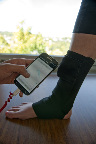 "Washington State University researchers have developed a ""smart"" sock to track ankle edema, a symptom of ... <a href="