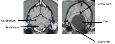 MRI images of Murray's brain and cyst compared to a normal brain.