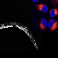 Nematode worm and cells