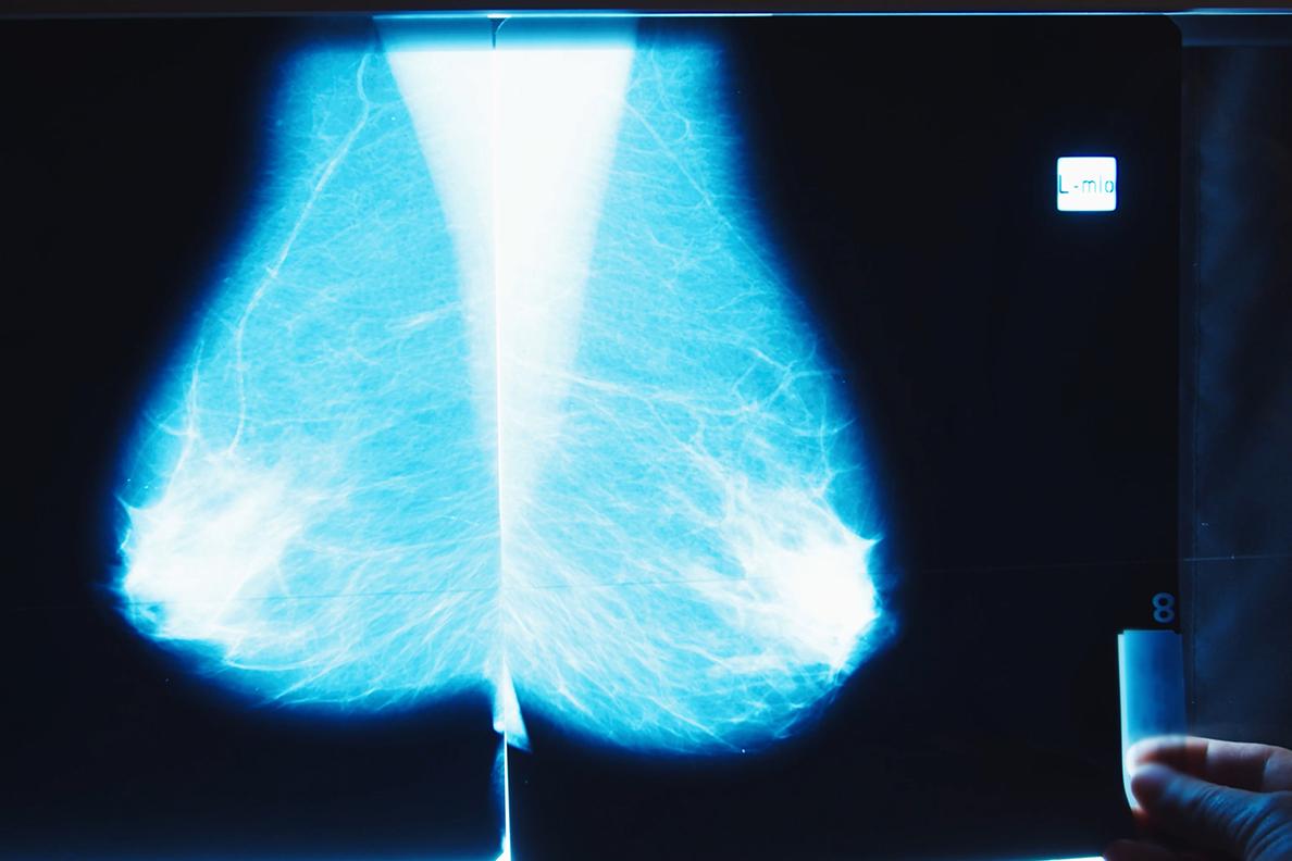 Someone holding a mammogram X-ray.