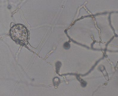 Saprolegnia oogonium being parasitized by Pythium