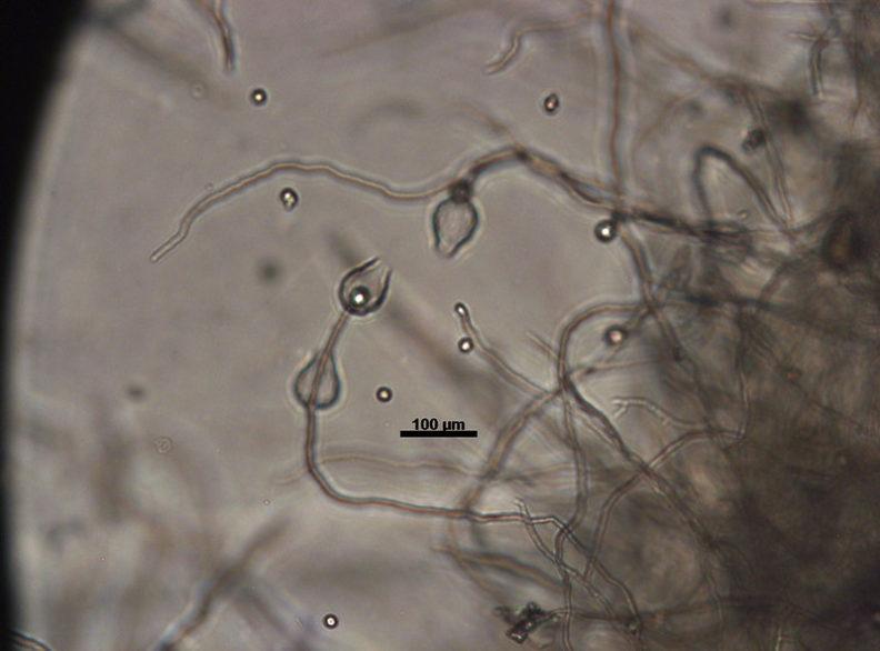 Phytophthora sp. sporangia