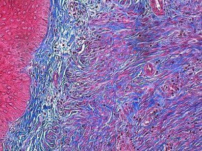 Mouse Uterus