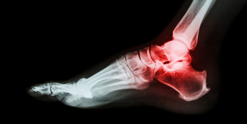 X-ray image of arthritic ankle with inflammation shown in red