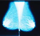 Image of a mammogram