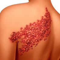 Illustration of a shingles outbreak on someone's back.