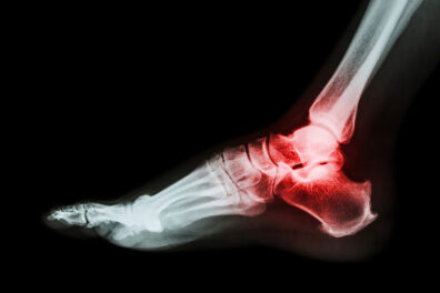 X-ray image of a foot.
