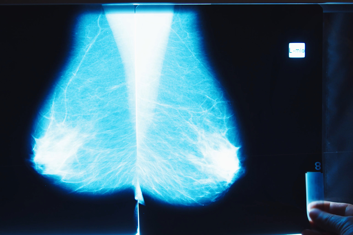 Study Reveals Inequities in Breast Cancer Screening During COVID-19 Pandemic