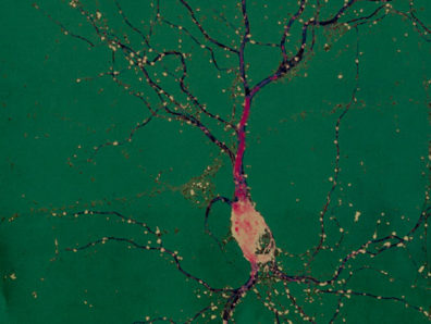 A single neuron from a rat's hippocampus, an area of the brain essential for learning and memory. The bulbous part is the cell body. fluorescent color markers have been attached to specific proteins to allow researchers to assess the length and complexity of dendrites (green) and the number and size of dendritic spines (red). Each spine is part of a synapse, where this neuron receives incoming signals from other neurons. Photomicrograph courtesy Gary Wayman.