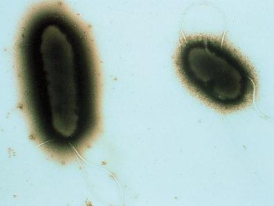Electron micrograph of cheatgrass suppressive bacteria. Courtesy S. Gurusiddaiah and the WSU Franceschi Microscopy and Imaging Center.