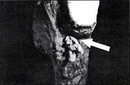 Bone spear point broken off in rib.
