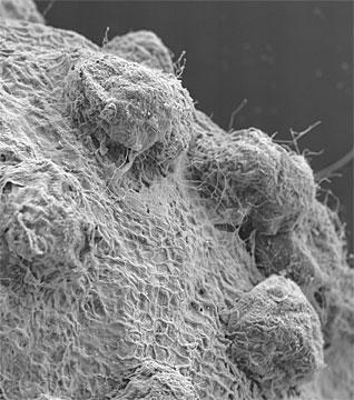 Pleospora herbarum fungus