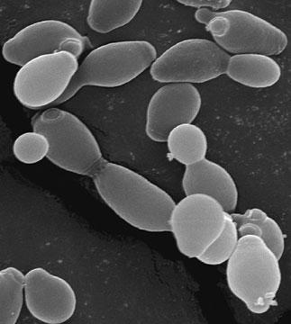 Wine yeast micrograph