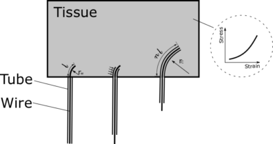 steerable needles